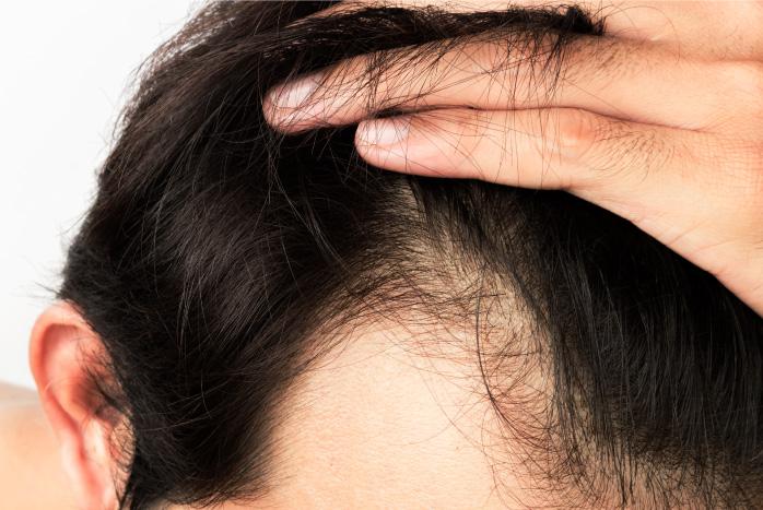 Chute de cheveux homme